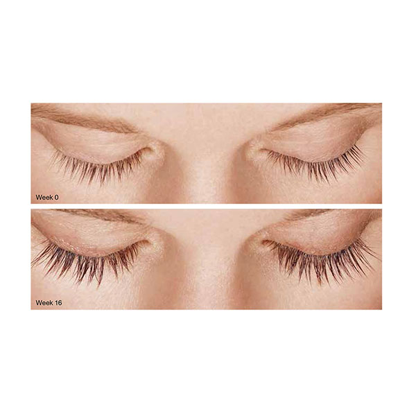 Latisse Eyelash Growth System 360 Medspas Services