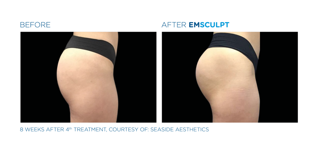 emsculpt results on thighs