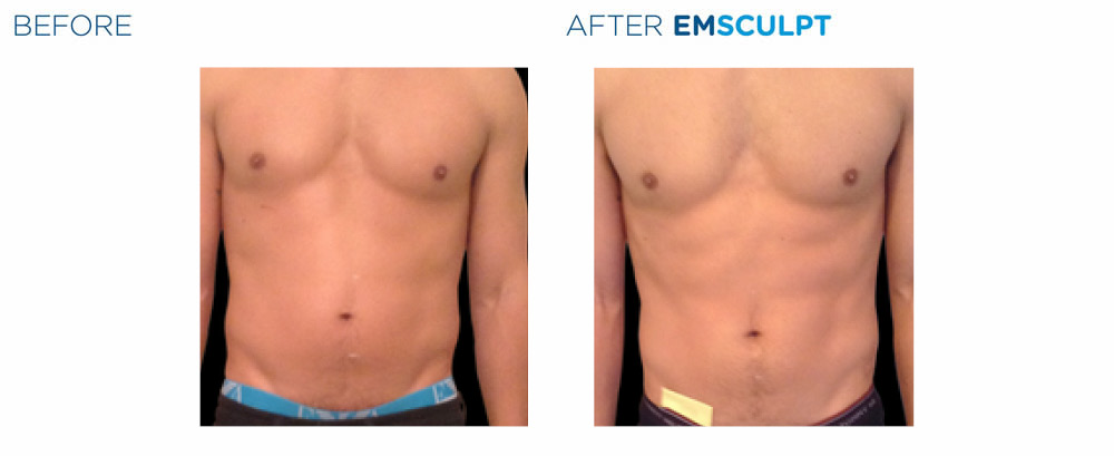 emsculpt results on stomach