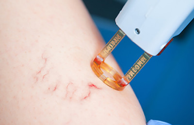 vein removal laser treatment